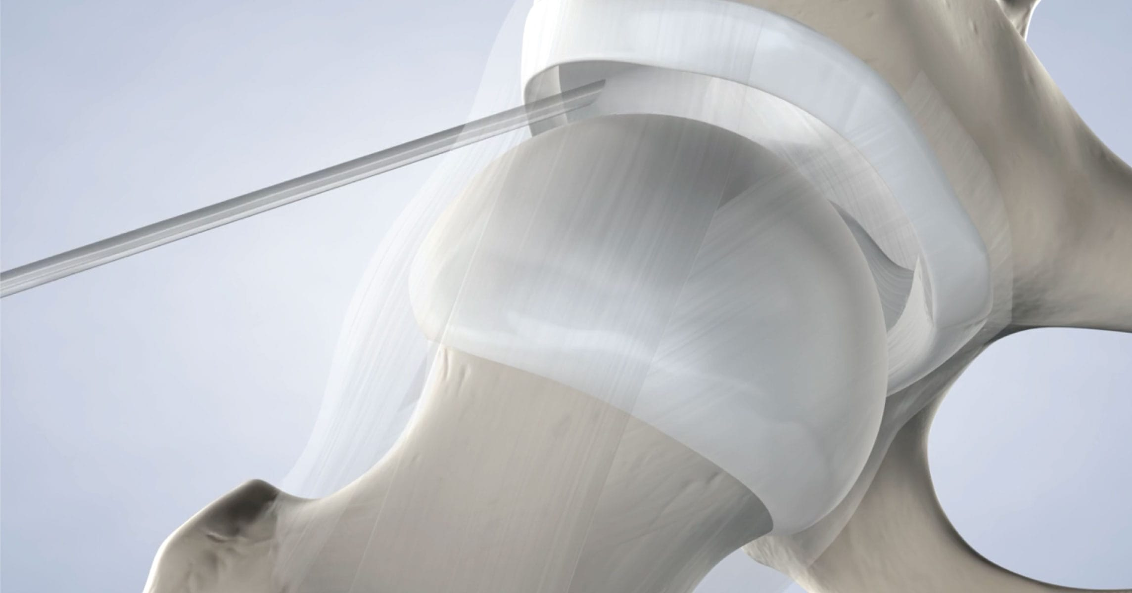Hip Arthroscopy in Marin, CA